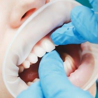 Gambar bleaching gigi